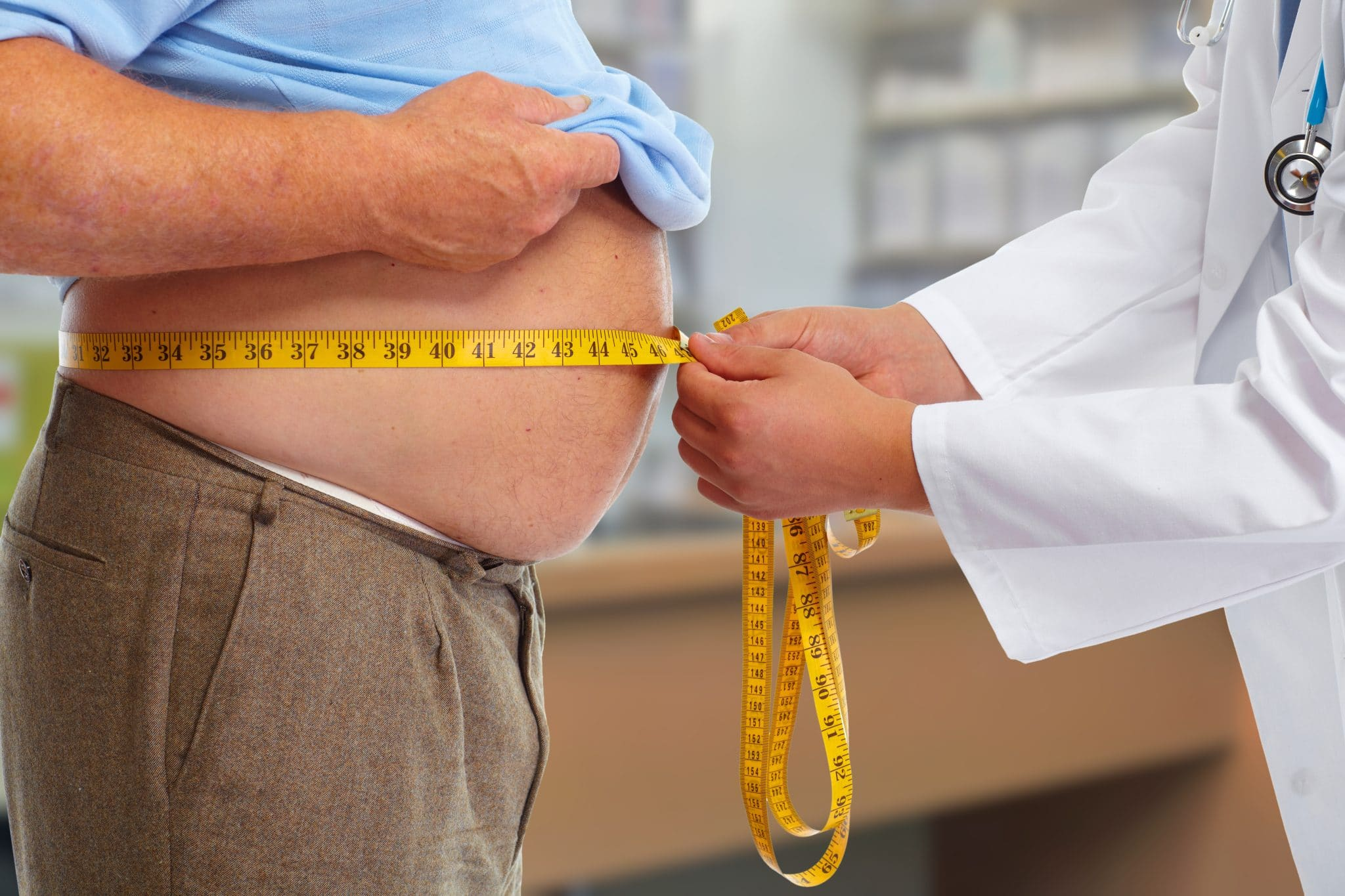 Doctor measuring obese man's stomach as part of medically supervised weight loss