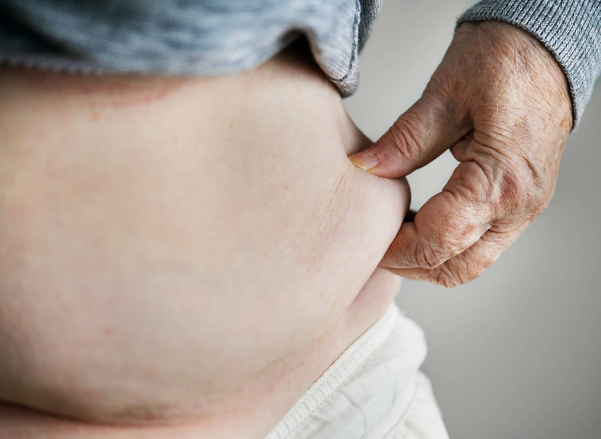 Closeup of obese senior citizen pinching midsection